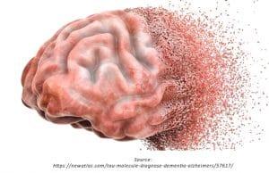 perawatan demensia
