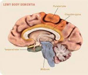 lewy body demensia
