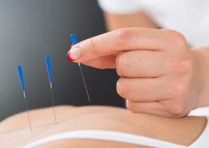 akupuntur tusuk jarum